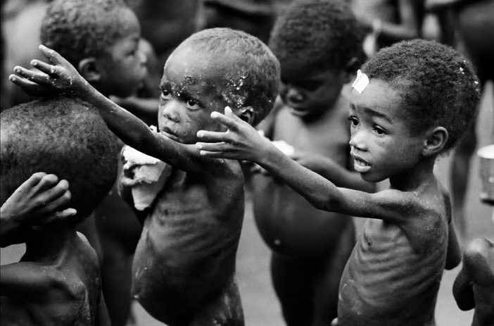 starving-child-5